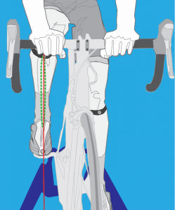 knee pain alignment