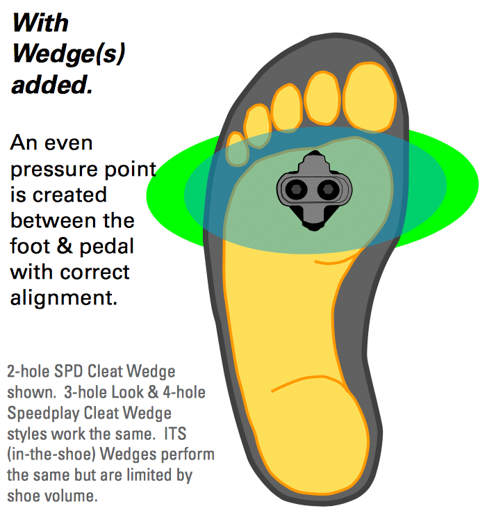 with wedges foot