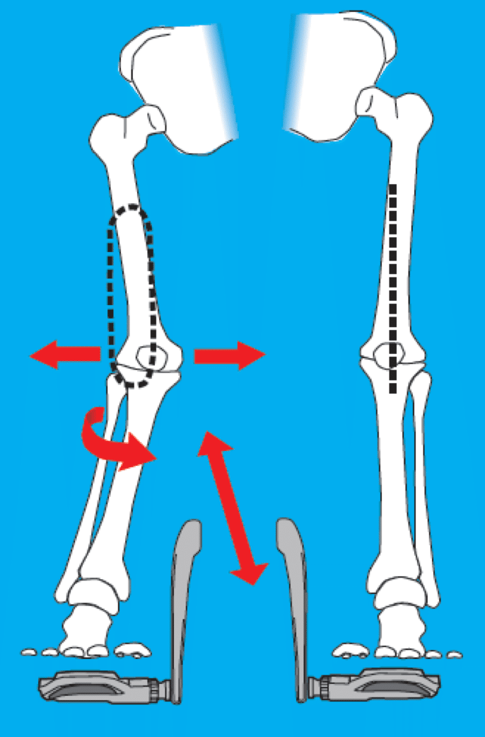 cycling knee collapse without wedges