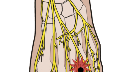 Morton's Neuroma in Cycling: Nerve Pain Between the Toes